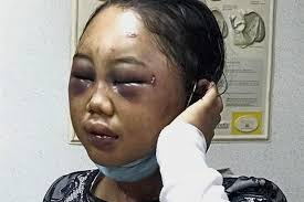 Suyanti, an Indonesian maid, was slapped and punched every day on top of being called an animal by her employer. Img from The Star, 2016.