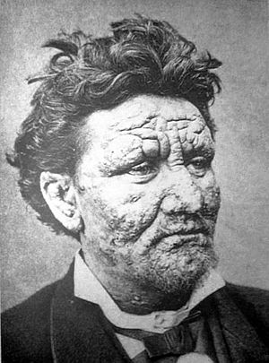A young man with leprosy, from 1886. Img from Wikipedia.
