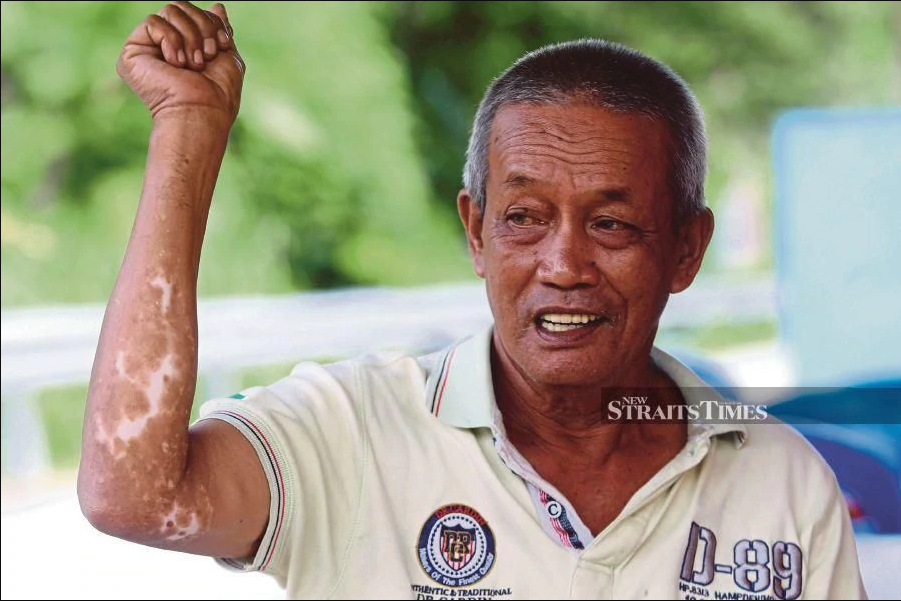 Osman showing the skin diseases on his arm. Image from NST