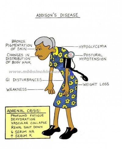A very medical illustration of Addisonian symptoms. Image from StuDocu